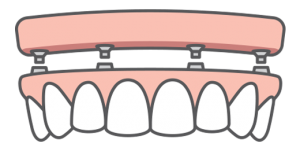 Illustration of an All-on-4 full-arch dental implant-supported bridge and how it fits onto four dental implants
